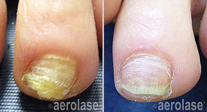 nails1-pair-crop-u356149